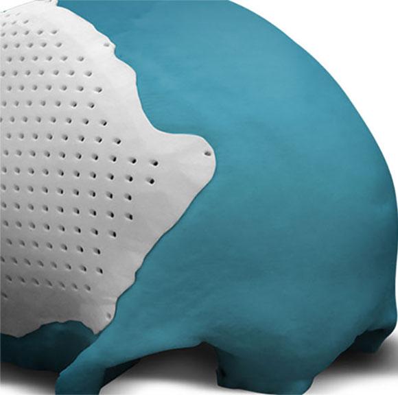 Prótese de cranio em titânio biocompatível é de fácil utilização